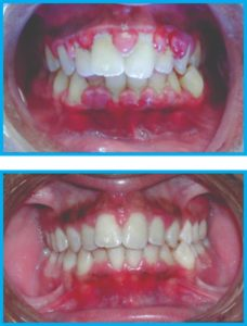 Gum Surgery at Radiant Dental Clinic